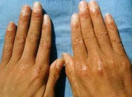 临沂专家解答皮肌炎是怎么造成的