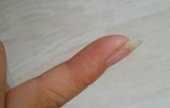 科学认知导致手部形成水泡的因素的相关图片