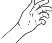 手癣的症状表现特点要科学认知的相关图片