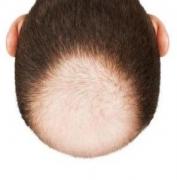 形成脱发的不良习惯当去除的相关图片