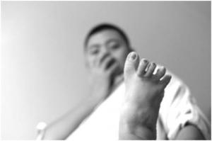 脚气的几种治疗小方法