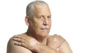 城阳皮肤病专家讲白癜风的病发原
