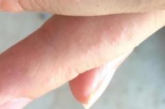 手部产生水泡的形成性因素应当全面认知