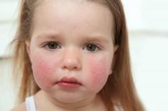科学运用面部皮肤过敏性发红的护理办法