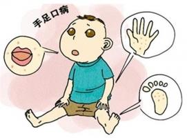 潍坊皮肤病医院小儿手足口病的症状表现的相关图片