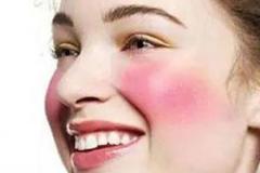 脸上形成皮肤过敏的原因需全面认知的相关图片