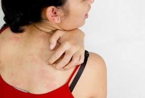 青岛秋季湿疹来袭怎么预防的相关图片