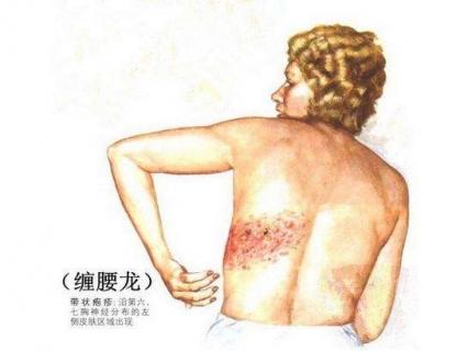 潍坊带状疱疹的发病症状及治疗的相关图片
