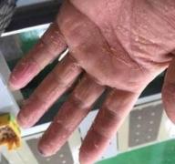 针对性的应用祛除手癣的医治药方的相关图片