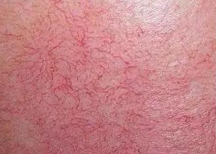红血丝生成的致病原因当全面知悉
