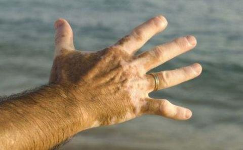 青岛皮肤病医院患上白癜风的症状表现图