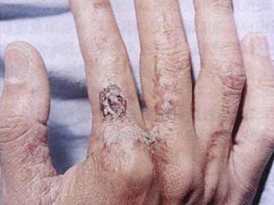 放射性皮炎治疗方法