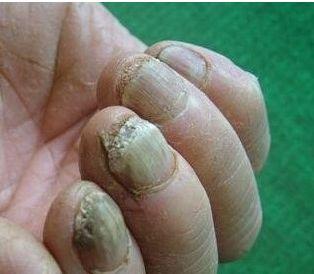 什么原因会造成灰指甲的病发