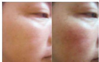 青岛脸部红血丝用中药能彻底去除吗的相关图片