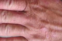多形性日光疹所形成的症状是如何