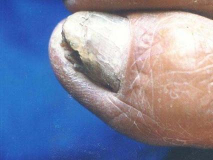 怀孕期间怎么预防灰指甲