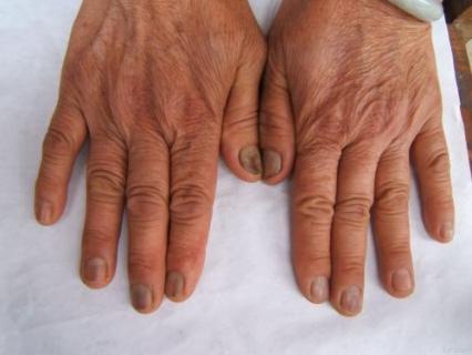 甲癣的症状类型分为几种