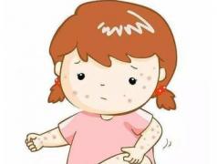 特应性皮炎被断定的症状体现特征