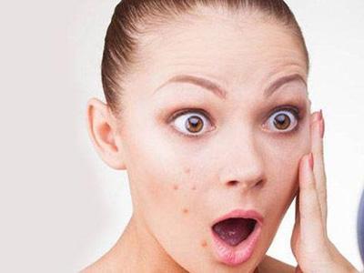 临沂怎么预防嘴部发干发裂的相关图片