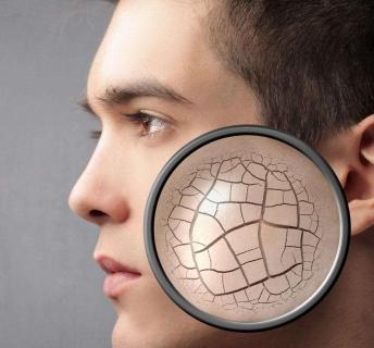 冬季皮肤干燥脱皮如何保养的相关图片