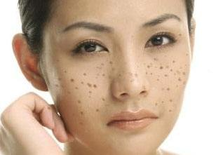 怎么预防脸部出现斑点