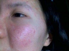 促使自身面部形成过敏状况的原因的相关图片