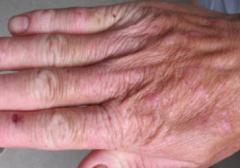 多形日光疹生发的症状体现形式的相关图片
