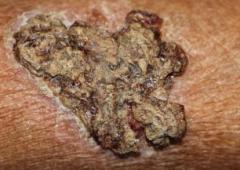 孢子丝菌病进行规范化预防的日常
