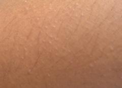 摩擦性苔藓样疹的症状体现特点
