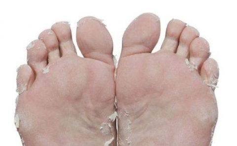 治疗脚气的日常小方法