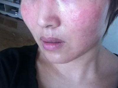 青岛面部皮肤过敏了怎么办