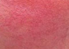 红血丝病症呈现的诱发原因