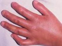 患上皮肌炎病症的自我护理办法的相关图片