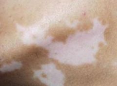 皮肤白斑呈现的外在体现特点