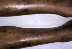 皮肌炎呈现的诱发原因的相关图片