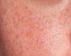 产生了蝴蝶斑的医治办法应具有针对性的相关图片