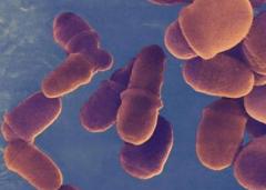 脂溢性皮炎呈现的症状特点的相关图片
