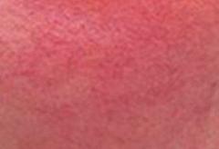 红血丝疾患的防备办法当正确采用的相关图片