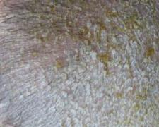 头部脂溢性皮炎进行护理的办法的相关图片