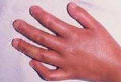 皮肌炎形成的医治办法应规范的相关图片