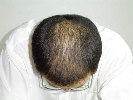 什么水果有利于治疗脱发