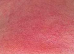 红血丝疾患生发的致病原因的相关图片