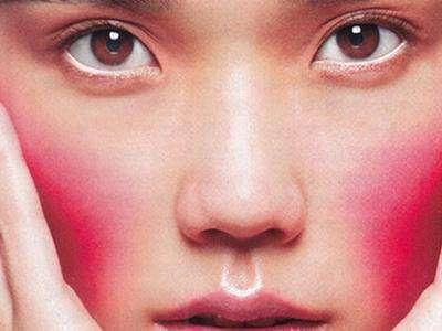 脸部的红血丝是怎么样造成的的相关图片