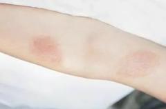 认识易于诱发皮肤过敏的因素