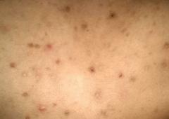 应怎样避免痤疮疾患的生发