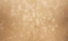 白斑在皮肤上呈现的种类与表现特