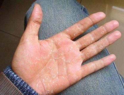 中医治疗手掌脱皮的症状