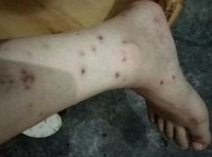 丘疹性荨麻疹进行医治的药方