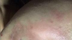 皮炎湿疹为什么会产生的诱因