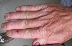 多形日光疹有什么样的症状表现特点的相关图片